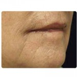 Laser Skin Resurfacing Before & After Patient #1796