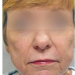 Laser Skin Resurfacing Before & After Patient #1793