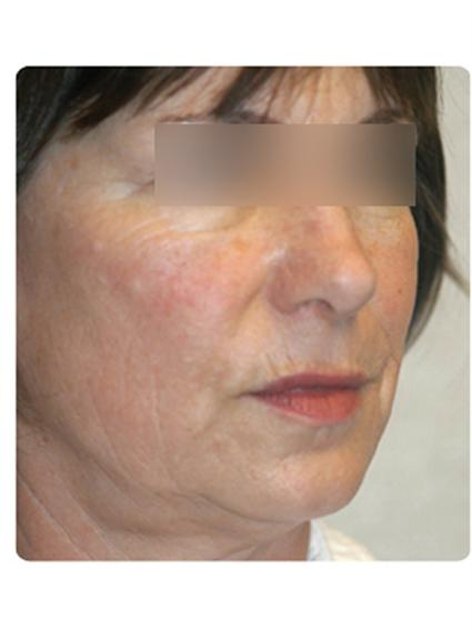 Laser Skin Resurfacing Before & After Patient #1790
