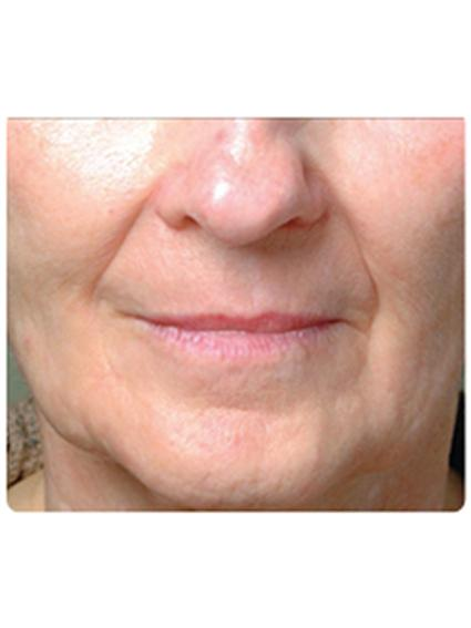 Laser Skin Resurfacing Before & After Patient #1787