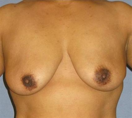 Breast Lift Before & After Patient #1266