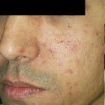 Venus Viva Before & After Patient #1835