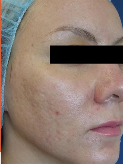 Venus Viva Before & After Patient #1832
