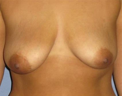 Breast Lift Before & After Patient #1263