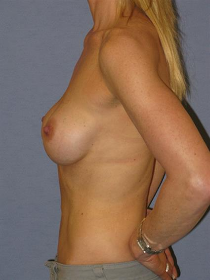 Breast Implants Revision Before & After Patient #1260