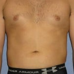 Liposuction Before & After Patient #1043