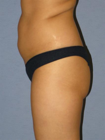 Liposuction Before & After Patient #1040