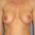 Breast Augmentation Before & After Patient #727