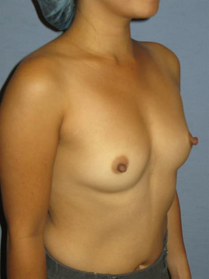 Breast Augmentation Before & After Patient #716