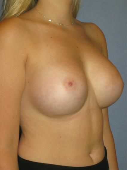 Breast Augmentation Before & After Patient #705