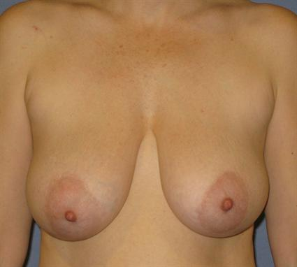 Breast Reduction Before & After Patient #1414