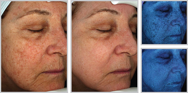 halo-laser-cosmetic-procedure-results