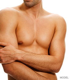 Breast reduction chat men