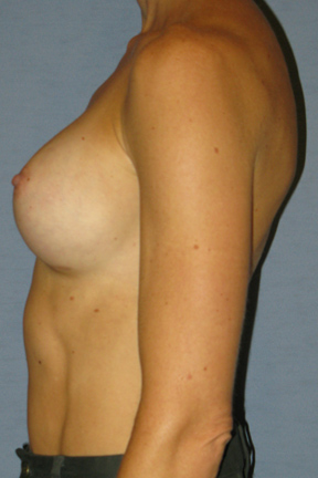 Breast Augmentation Before & After Patient #3628