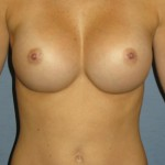 Breast Augmentation Before & After Patient #3652