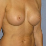 Breast Augmentation Before & After Patient #3842
