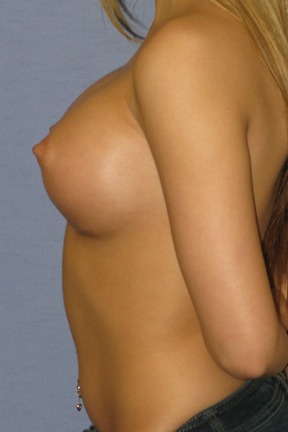 Breast Augmentation Before & After Patient #3849