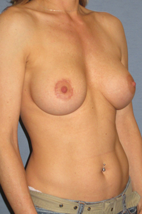 Breast Augmentation Before & After Patient #3856