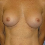 Breast Augmentation Before & After Patient #3873
