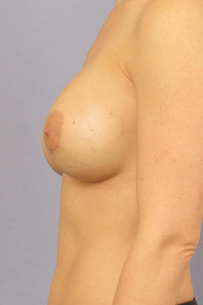 Breast Augmentation Before & After Patient #3883