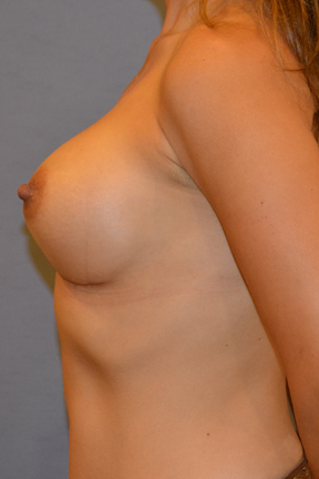 Breast Augmentation Before & After Patient #3903