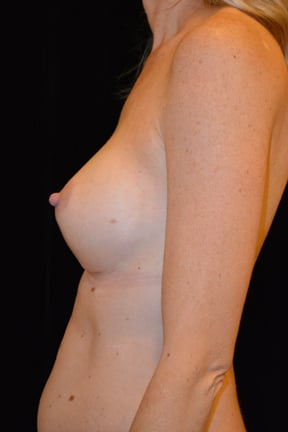 Breast Augmentation Before & After Patient #3921