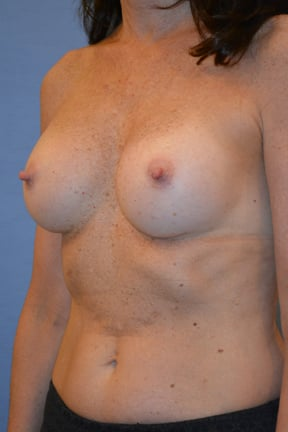 Breast Augmentation Before & After Patient #3688
