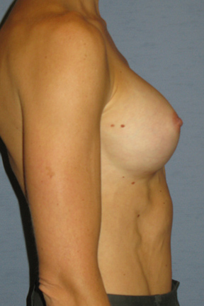 Breast Augmentation Before & After Patient #3697