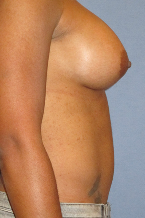 Breast Augmentation Before & After Patient #3720