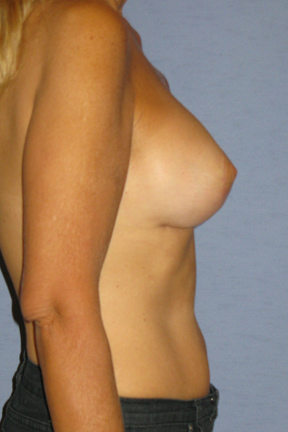Breast Lift Before & After Patient #4039