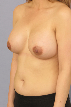 Breast Augmentation Before & After Patient #3728