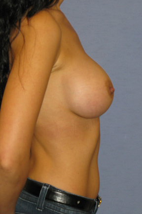 Breast Augmentation Before & After Patient #3731