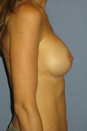 Breast Augmentation Before & After Patient #3641