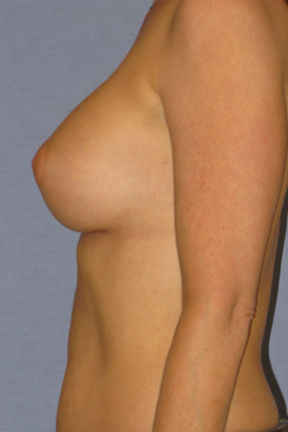 Breast Augmentation Before & After Patient #3775