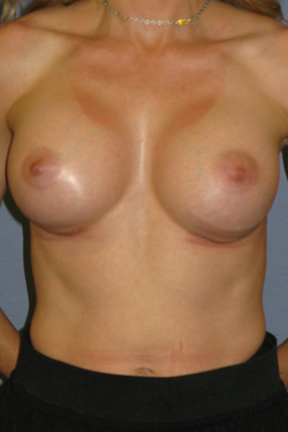 Breast Augmentation Before & After Patient #3792