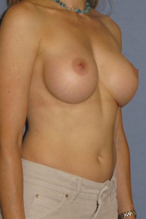 Breast Augmentation Before & After Patient #3795