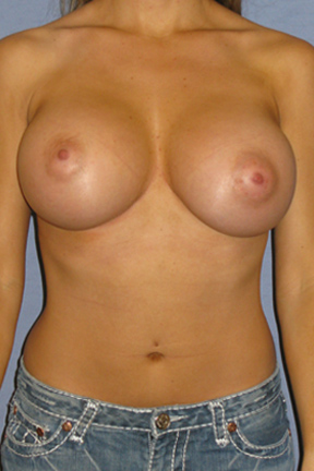 Breast Augmentation Before & After Patient #3798