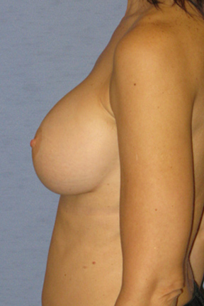 Breast Augmentation Before & After Patient #3815