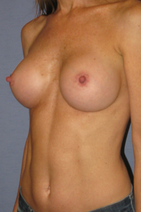 Breast Augmentation Before & After Patient #3820