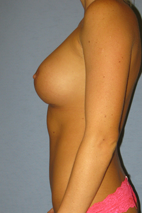 Breast Implants Revision Before & After Patient #3497