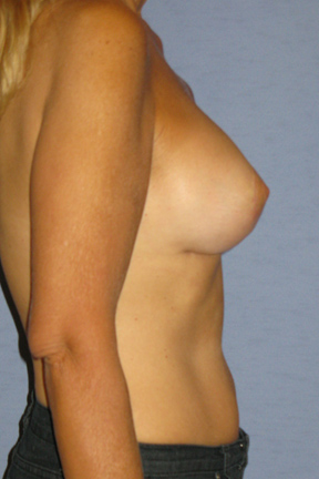 Breast Lift Before & After Patient #3946