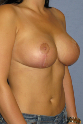 Breast Lift Before & After Patient #3951