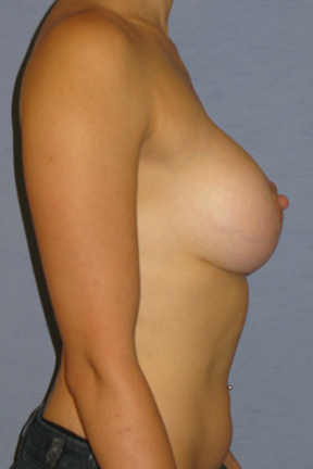 Breast Lift Before & After Patient #3972