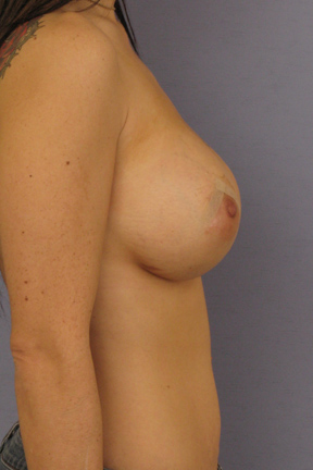 Breast Lift Before & After Patient #3984