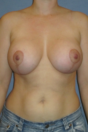 Breast Lift Before & After Patient #3991