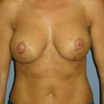 Breast Lift Before & After Patient #4006