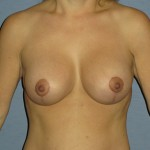 Breast Lift Before & After Patient #4023