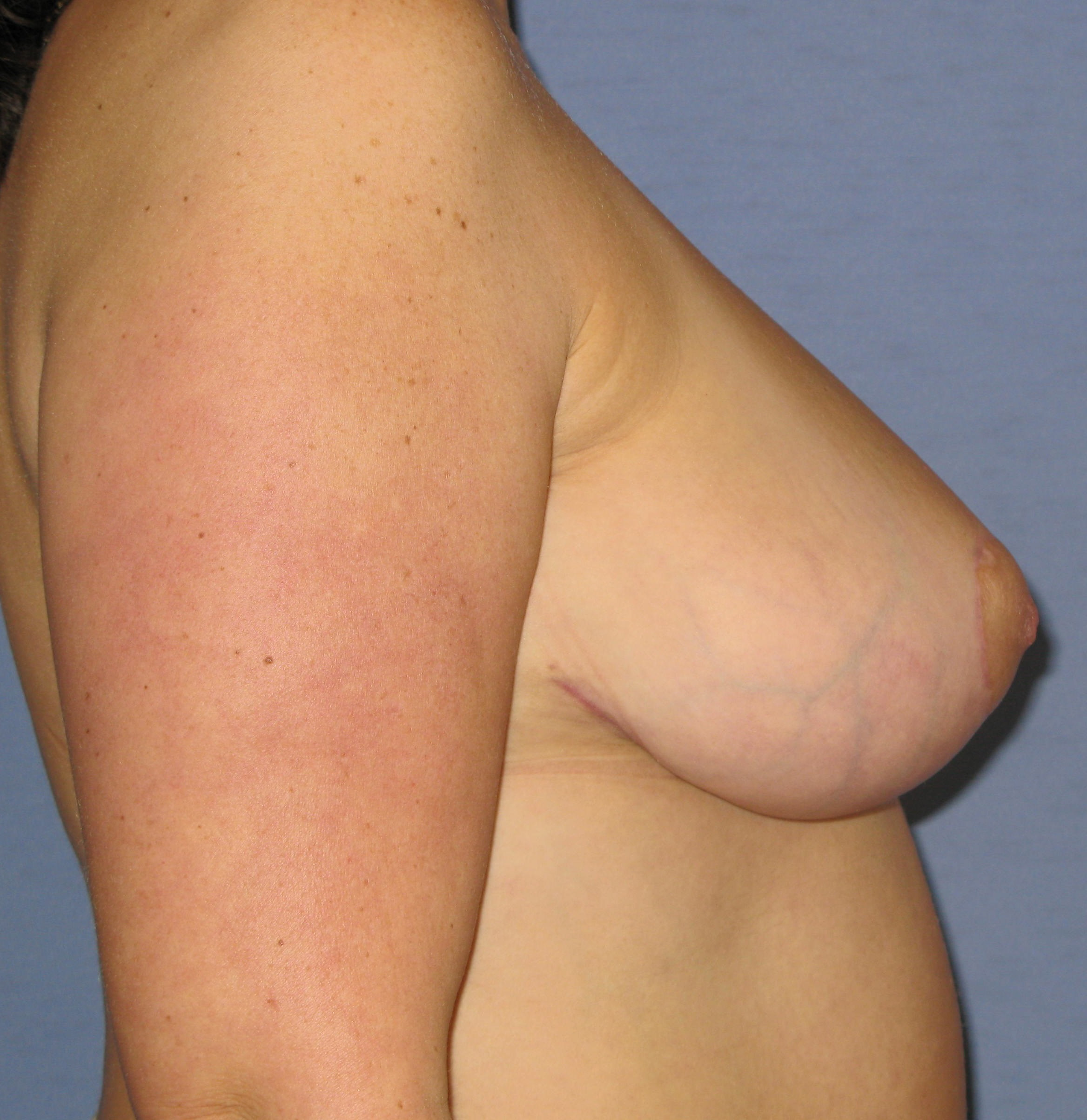 Breast Lift Before & After Patient #4026