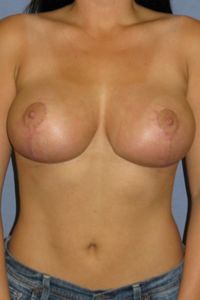 Breast Lift Before & After Patient #4029