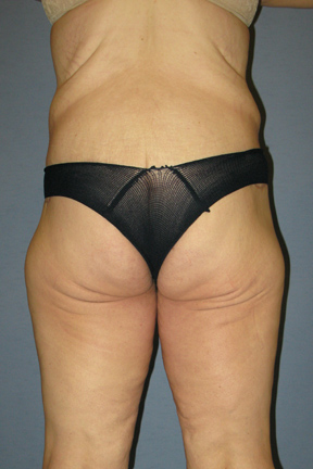Body Lift Before & After Patient #3556